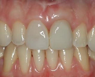 Tandvleesbehandelingen